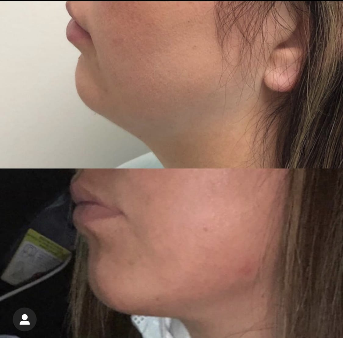 Juvederm patient before and after photos