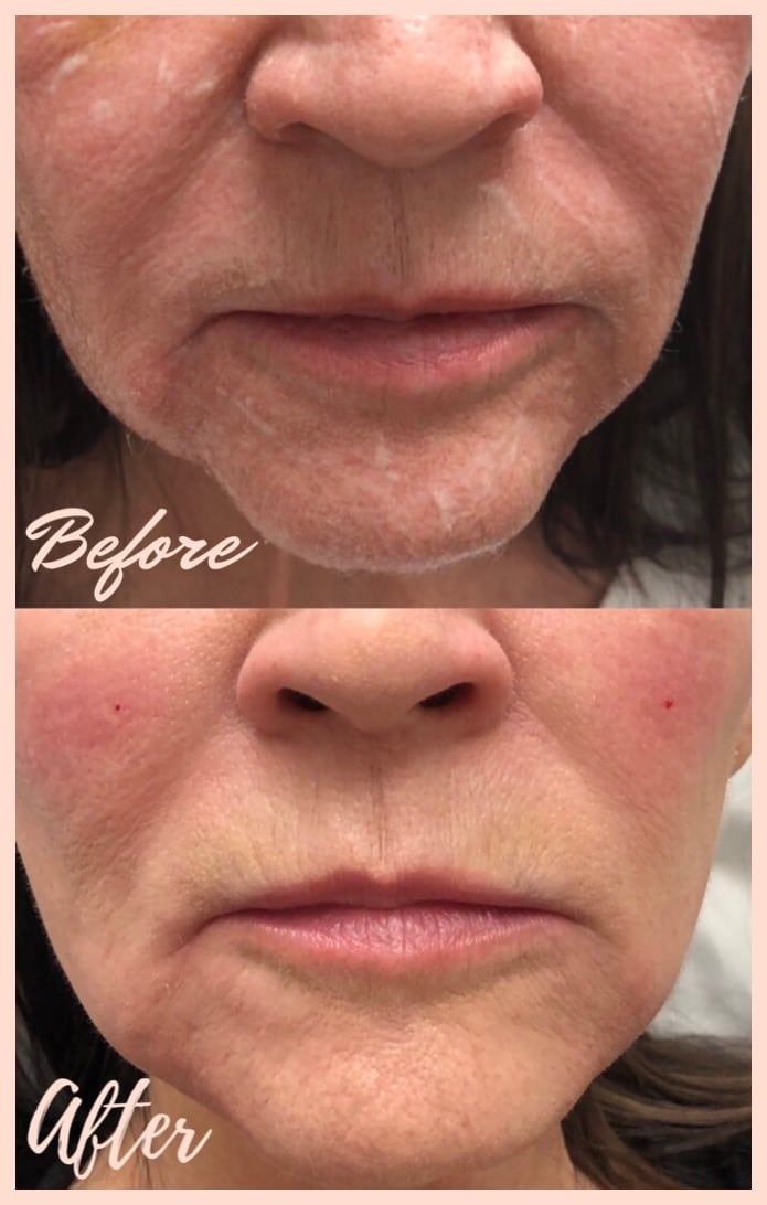 Patient before and after derma filler photos