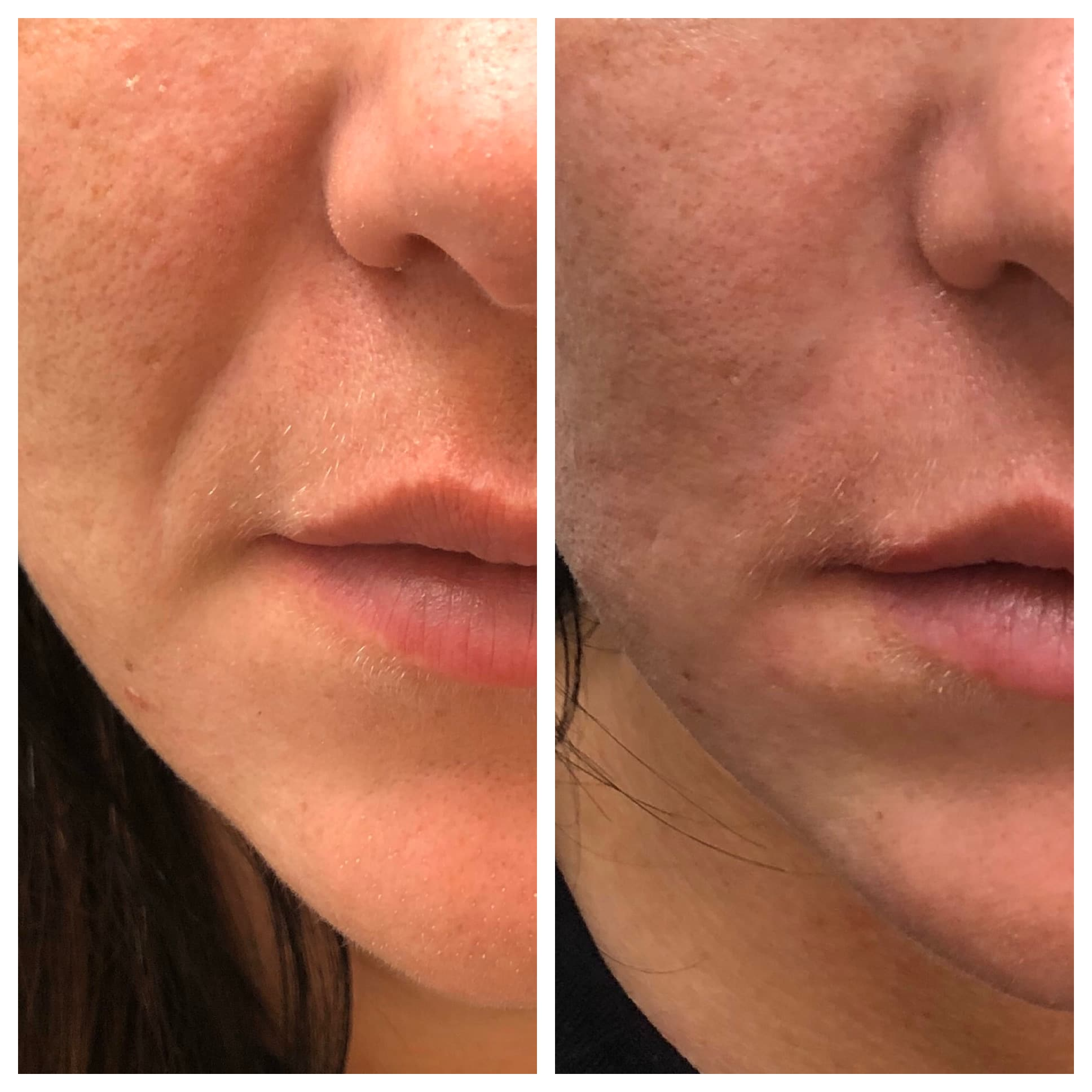 Nasal folder before and after patient photos with Vollure