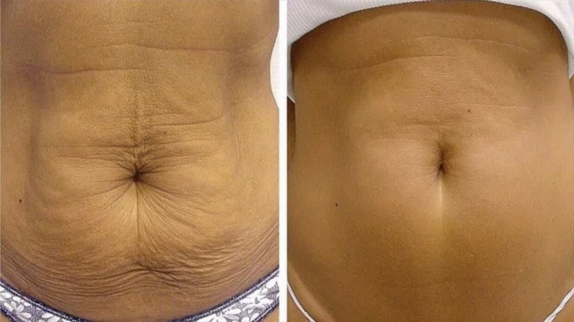 Forma skin tightening patient before and after photo