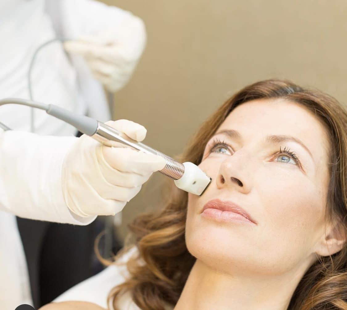 Image of woman getting Fractora procedure