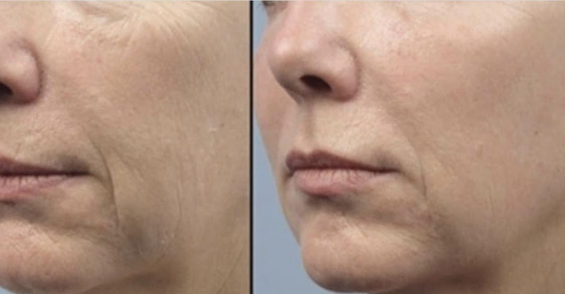 Fractora before and after image