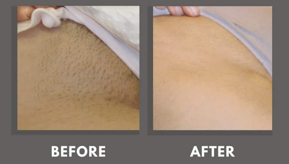 Women's bikini line laser hair removal before and after photos