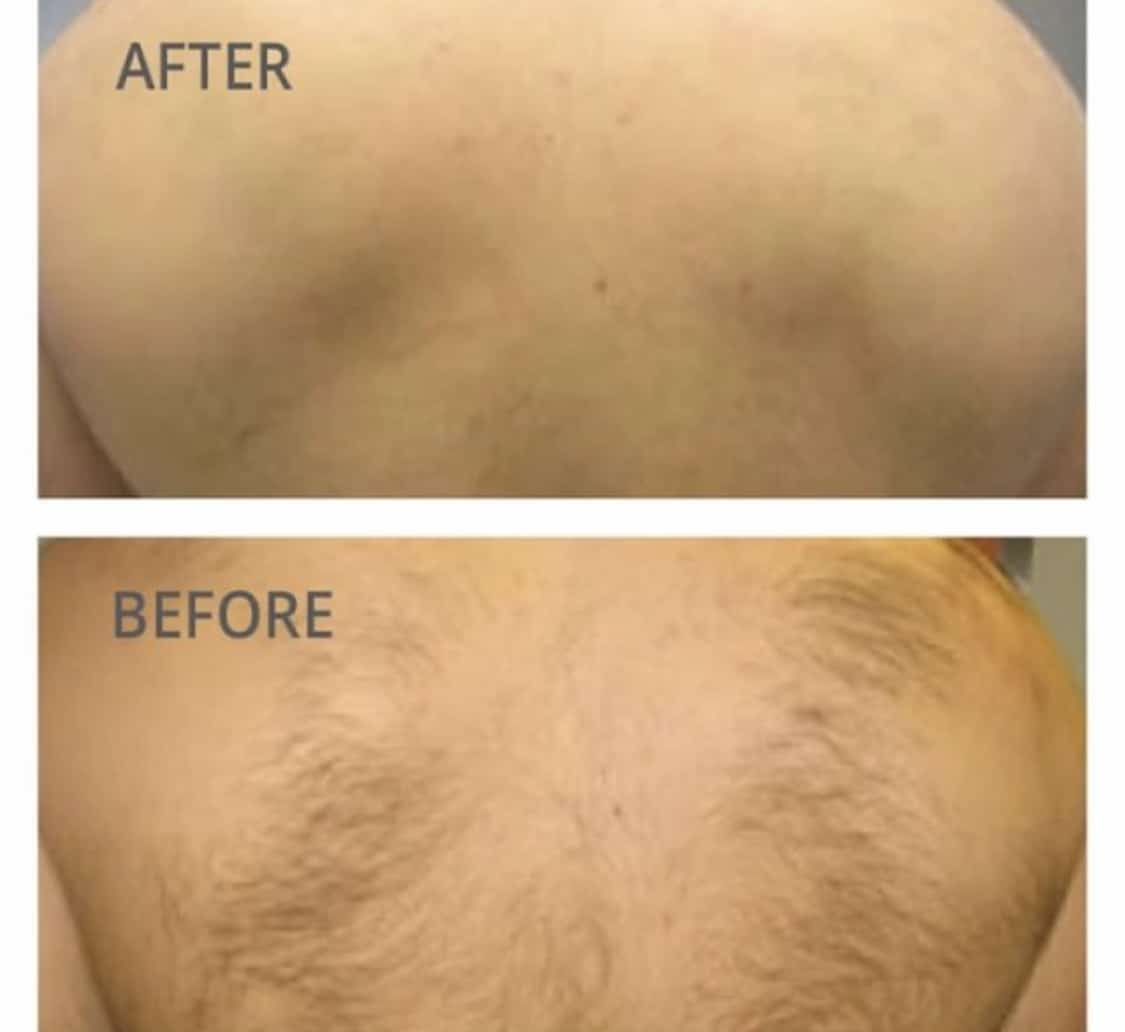 Men's back hair laser removal before and after photos